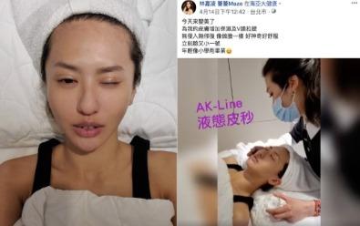 薔薔熱情推薦海亞大健康「AK-line液態皮秒」療程