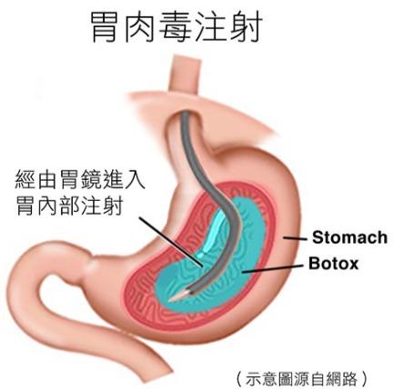胃肉毒注射方式示意圖